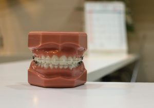 Model teeth with braces applied on table in orthodontist in Glasgow